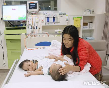 """【AP/뉴시스】 호주 ABC뉴스는 15개월 된 샴쌍둥이 자매의 분리 수술이 성공적으로 끝났다고 8일(현지시간) 보도했다. 쌍둥이 자매의 어머니는 """"매우 행복하다""""며 안도감을 나타냈다. 2018.11.09."""
