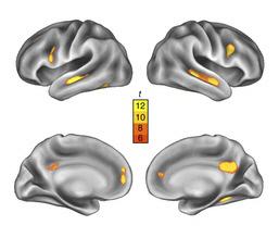 엄마는 출산 과정을 겪으며 뇌의 회백질 부피가 줄어들고 이는 출산 후 2년 뒤까지 유지된다. 왼쪽 사진의 노란색 부분은 출산 후 회백질이 줄어든 부위를 나타낸다. 이는 2년 뒤까지 유지되는 것으로 나타났다(오른쪽 사진, 노란색). 노란색은 빨간색으로 표시된 부분보다 회백질 크기 변화가 통계적으로 더 유의한 것을 나타낸다. 사진: 네이처 뉴로사이언스