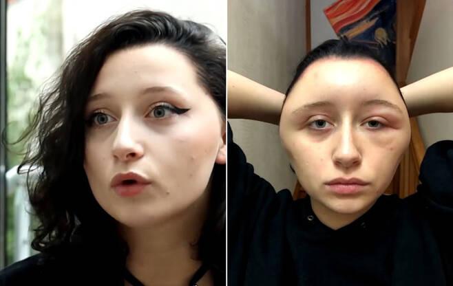 염색약 알레르기 탓에 얼굴 2배로 커진 여성의 사연
