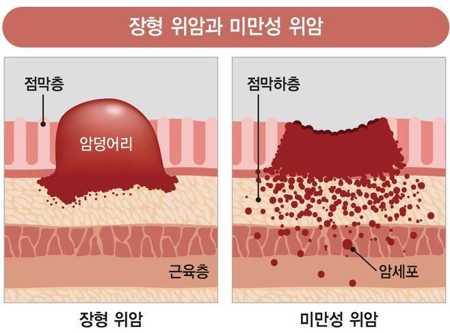 장형 위암과 미만성 위암. [자료 강동경희대병원]