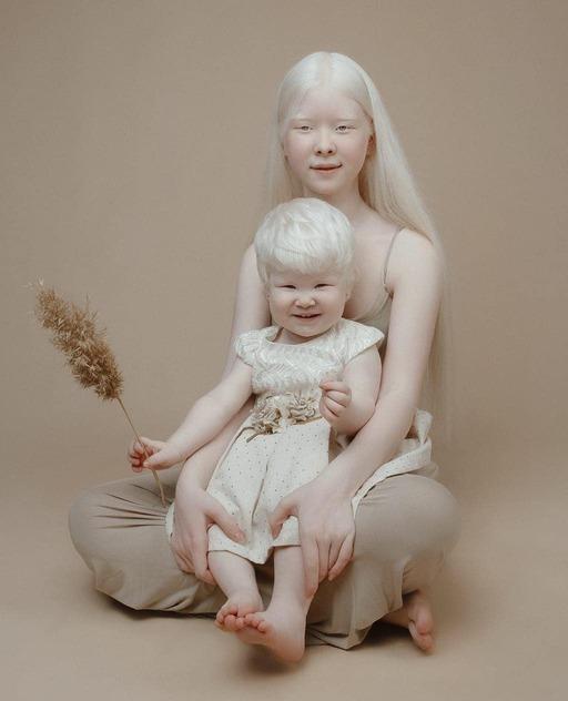 백색증을 앓고 있는 아셀(위),카밀라 칼라가노바는 자매가 포즈를 취하고 있다. 자매는 카자흐스탄에서 모델로 활동 중이다.