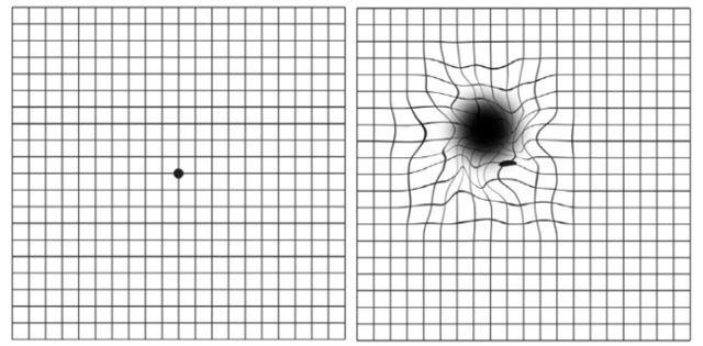 바둑판 모양의 암슬러 격자를 이용한 황반변성 증상 확인법. 황반변성 환자가 볼 때(오른쪽)는 정상인이 볼 때(왼쪽)와 달리 사물이 휘거나 찌그러져 보인다.