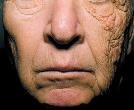 미국서 28년간 배달 트럭을 운전한 69세 남성의 얼굴 모습 [국제학술지 NEJM 논문 발췌]