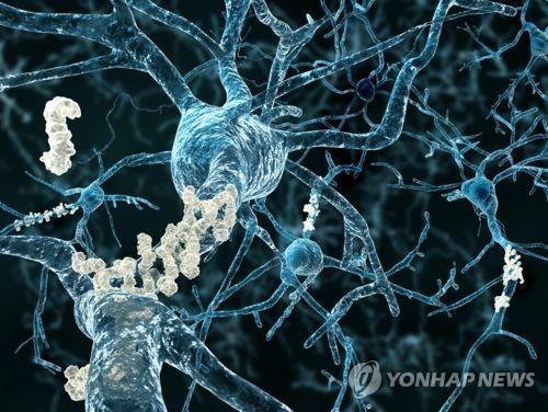 뇌 신경 조직에 침적한 아밀로이드 플라크 이미지 [연합뉴스 자료사진 / 재판매 및 DB 금지]