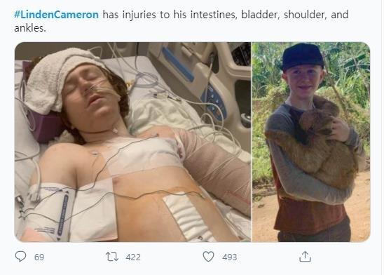 경찰 총격에 중상을 입은 13살 자폐아 린든 캐머런 [트위터 갈무리·재판매 및 DB 금지]
