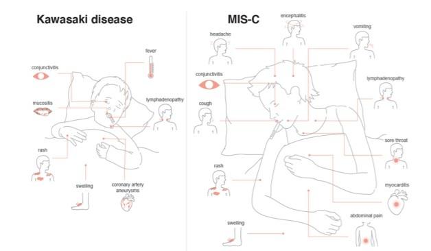 가와사키 병(왼쪽)과 MIS-C의 주요 증상을 비교한 그림이다. 발진과 결막염, 림즈절염 등이 공통적으로 발견되지만, MIS-C는 가와사키 병에서는 잘 관찰되지 않는 위장장애나 기침 등 호흡기 증상, 두통, 심근염 등이 추가로 관찰된다. 셀 논문 캡쳐