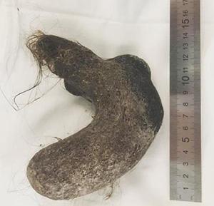 소녀의 위장에서 의료진이 꺼낸 머리카락 뭉치의 모습./사진=러시아 극동 부랴티야 공화국의 한 아동병원 인스타그램 캡처