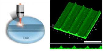 펨토초-레이저(Femtosecond laser)를 이용해 그림과 같이 인공수정체 가장자리에 성벽과 같은 여러 개의 홈을 디자인 하면 후발백내장을 유발하는 수정체 세포의 이동과 증식을 획기적으로 막을 수 있다.