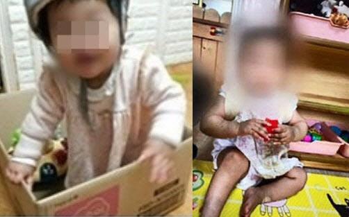 정인이가 장씨 부부 집에 보내지기 전(왼쪽)과 후에 극명하게 달라진 모습이 담긴 사진. (사진=온라인 커뮤니티 캡처)
