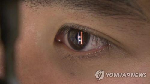 동공 [연합뉴스TV 제공]