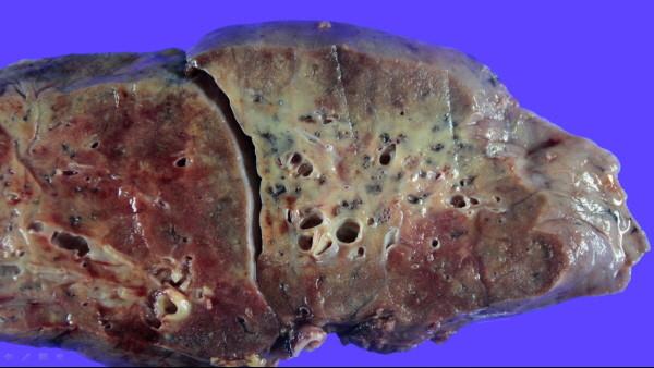 코로나19로 손상된 폐 단면 모습. 곳곳에 폐 섬유화가 진행됐다. [한림대성심병원]